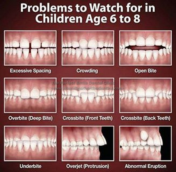 Dental Treatment in Chandigarh