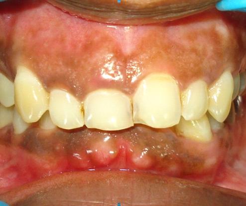 Dentist in Chandigarh