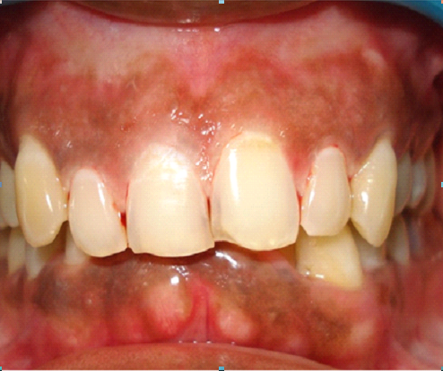 Chandigarh dentist