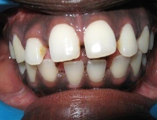 Dental Clinic Chandigarh
