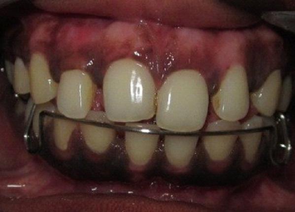 Chandigarh Dental Clinic